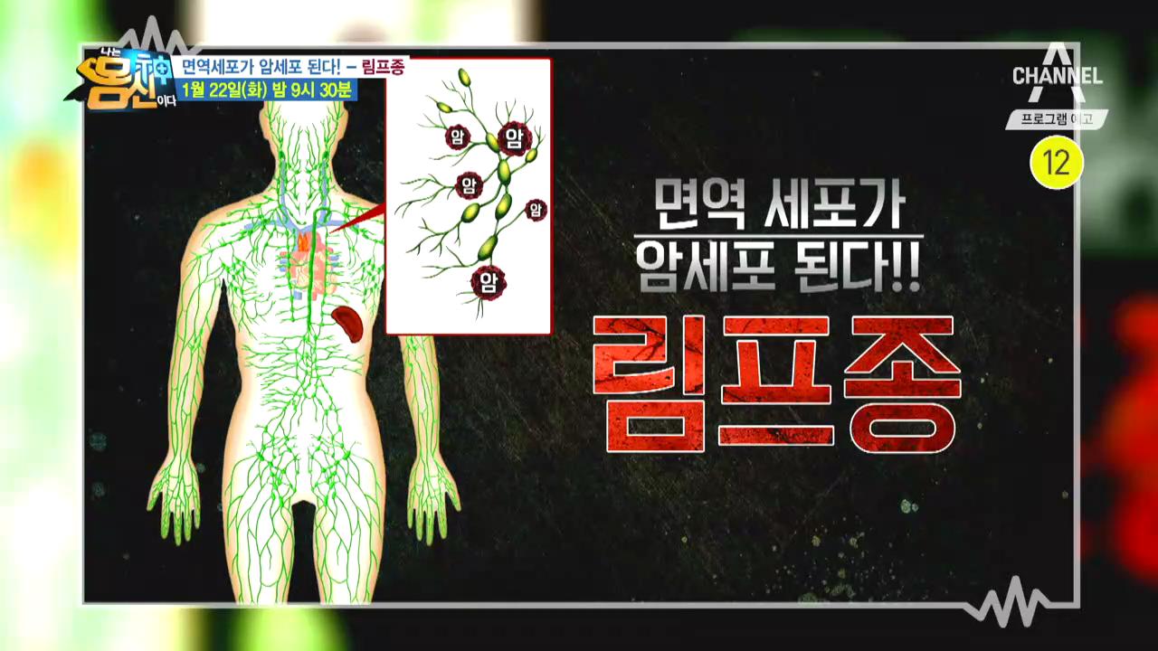 [예고] 면역세포가 암세포가 되어 공격한다! 누구도 안심할 수 없는 림프종 이미지