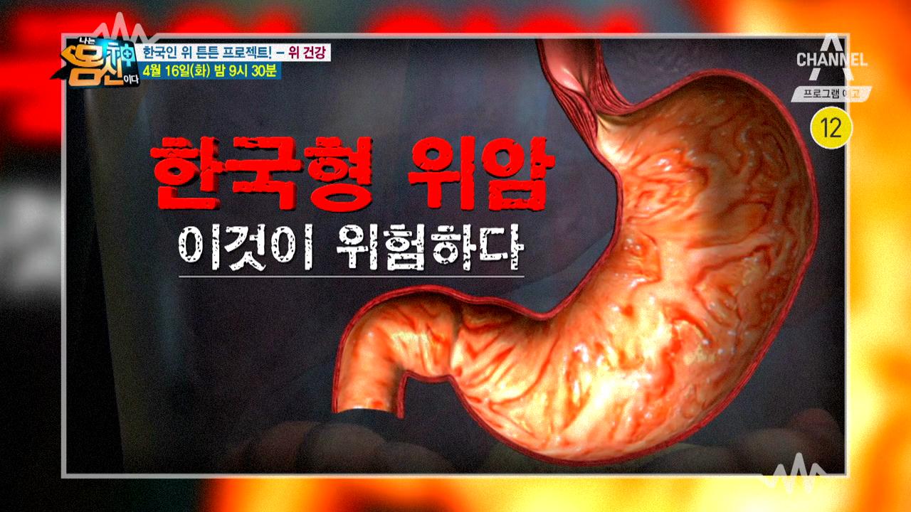 [예고] 위암발병률 세계 1위 한국! 한국형 위암이 따로 있다? 이미지