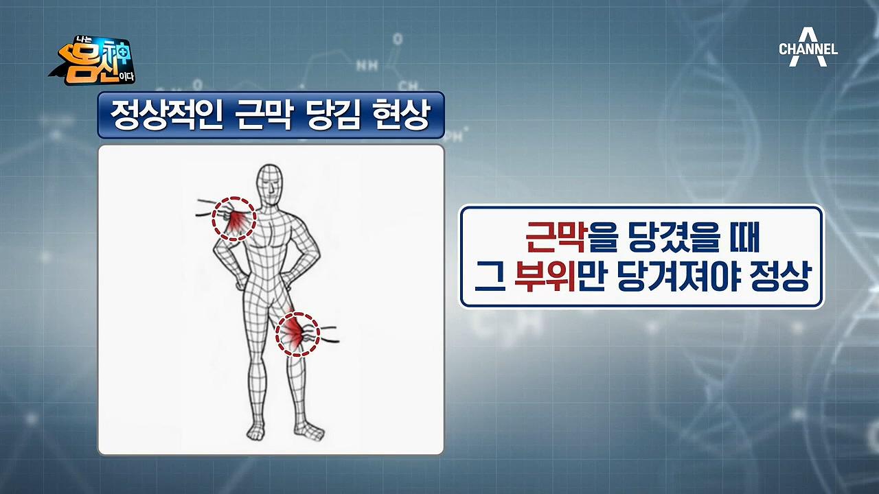 전신을 감싸는 근막이 변형된다?! 엉킨 근막이 부르는 어깨,무릎,허리 관절 통증ㄷㄷ 이미지