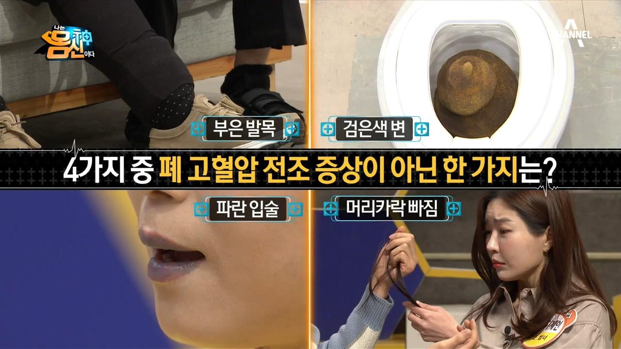검푸른 입술, 잔뜩 빠지는 머리카락?! 폐 고혈압의 진짜 전조 증상은? 이미지