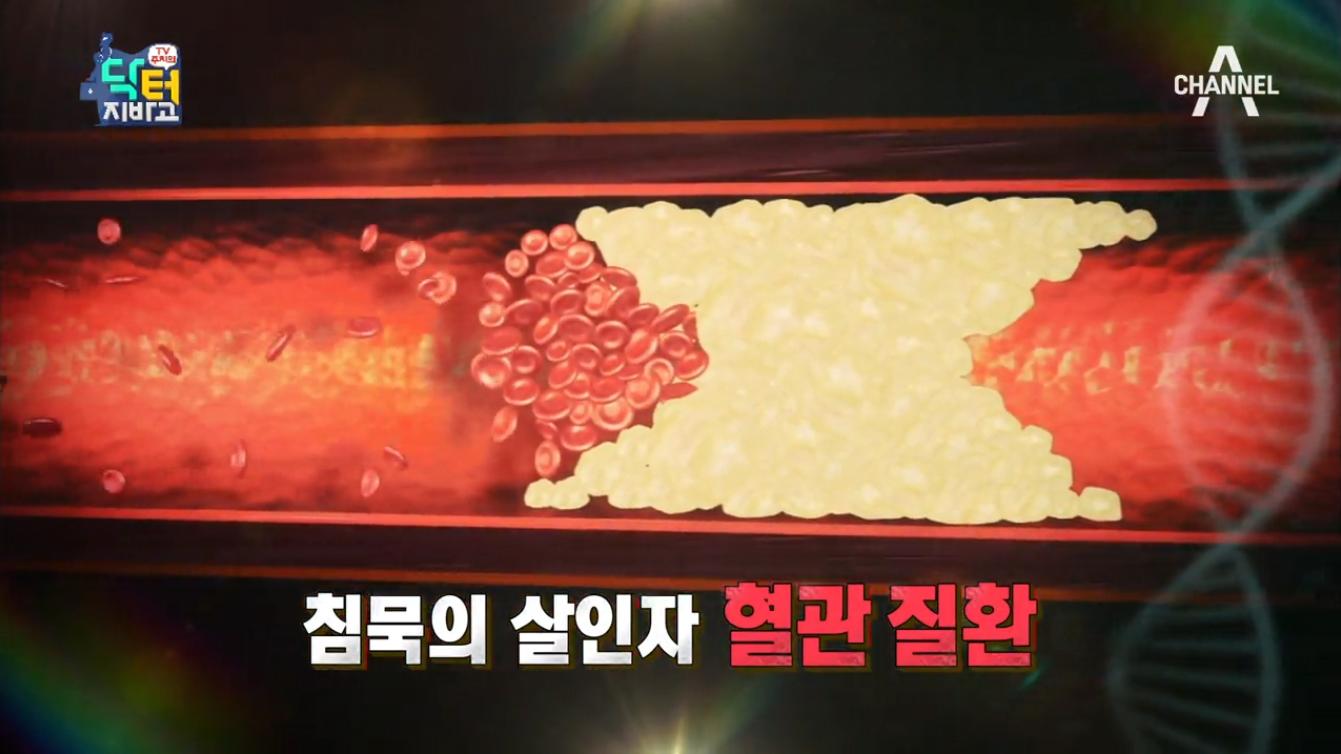 닥터지바고 181회