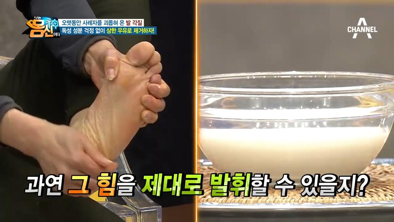 발뒤꿈치 각질로 고민인 사연자 '상한 우유'로 고민 1....