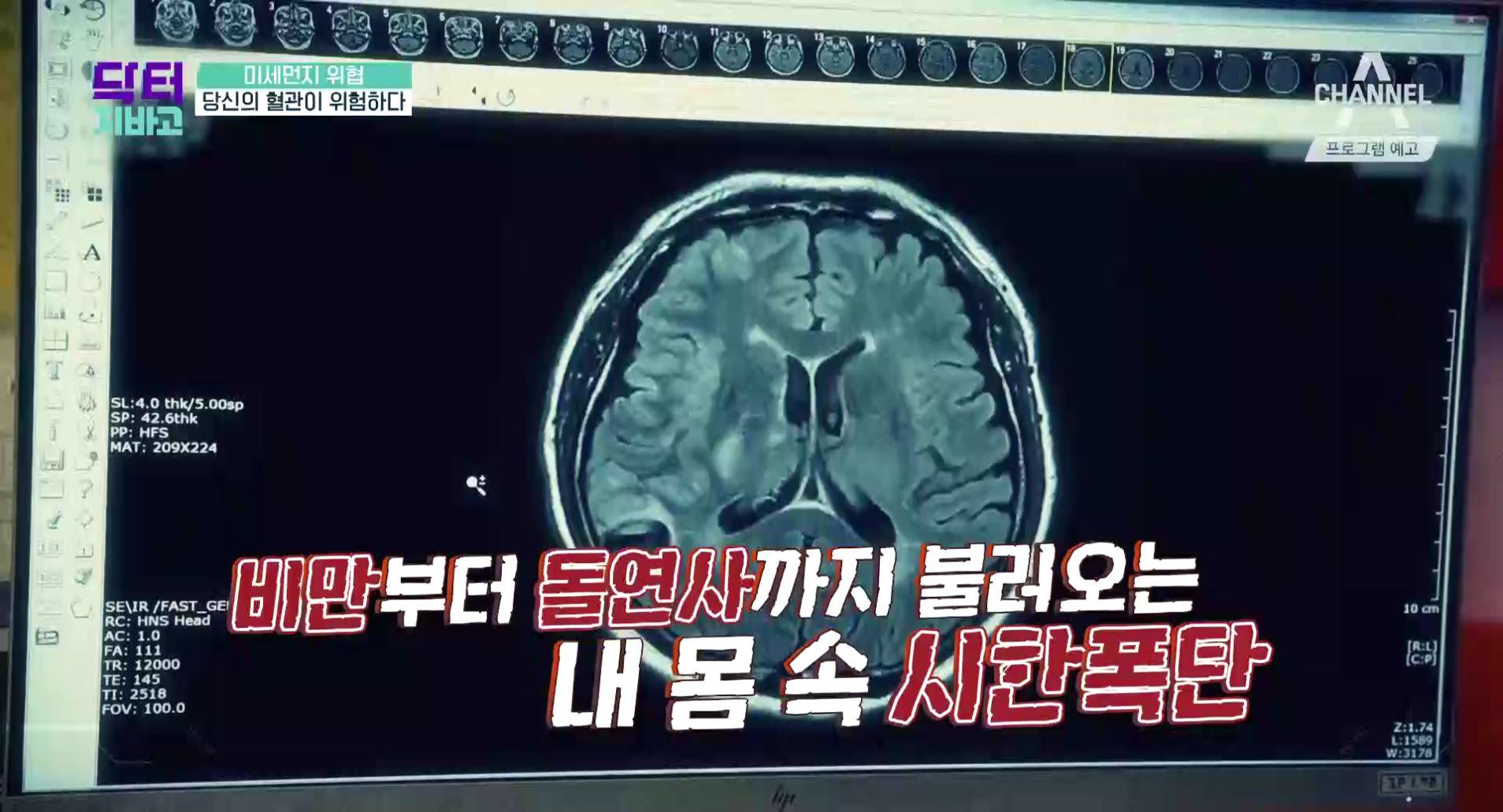 [예고] 미세먼지 위협, 돌연사를 부르는 대사증후군 비....