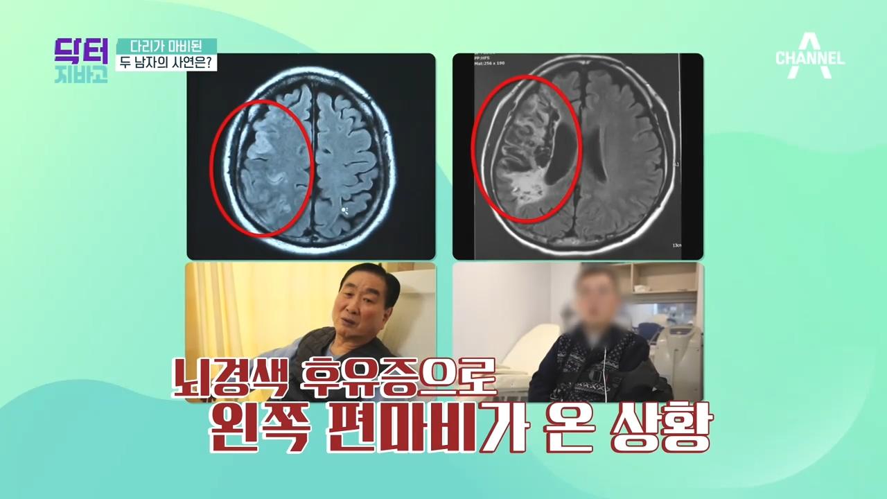 뇌졸증으로 다리가 마비된 사연자