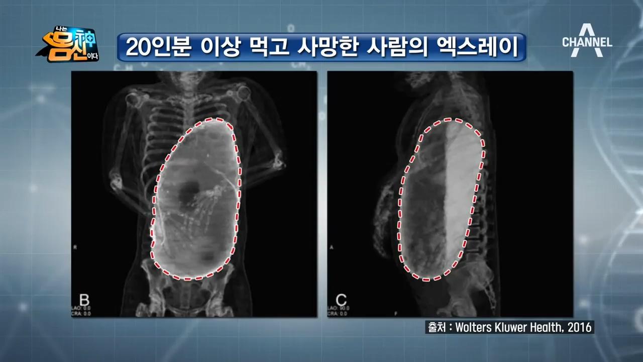 ※충격※ 한국형 위암의 원인 '과식과 폭식'! '내 위....