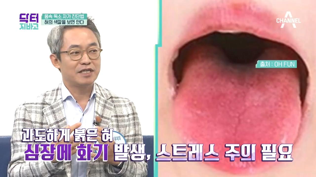 혀의 색깔을 보면 안다?! 몸속 독소 자가 진단법!