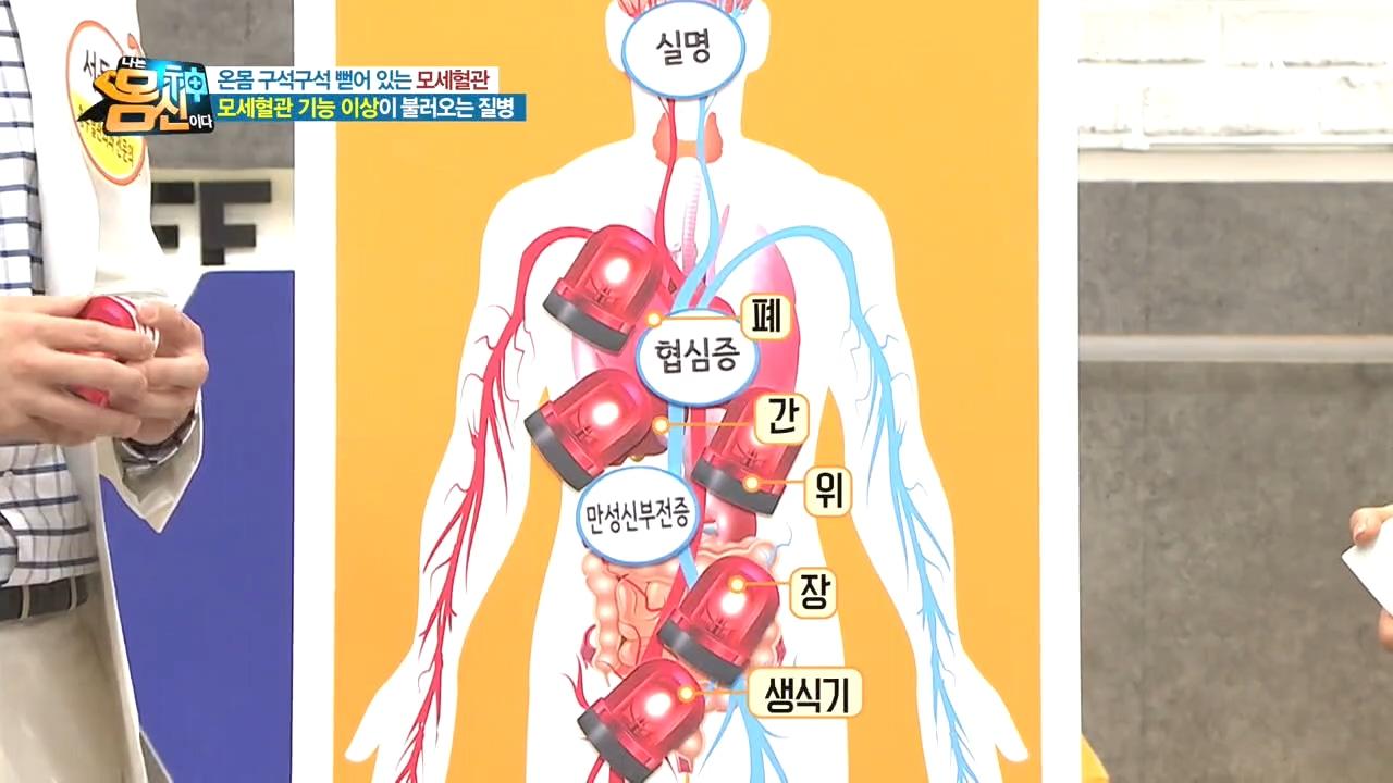모세혈관 기능 이상이 실명, 협심증, 만성신부전증부터 ....