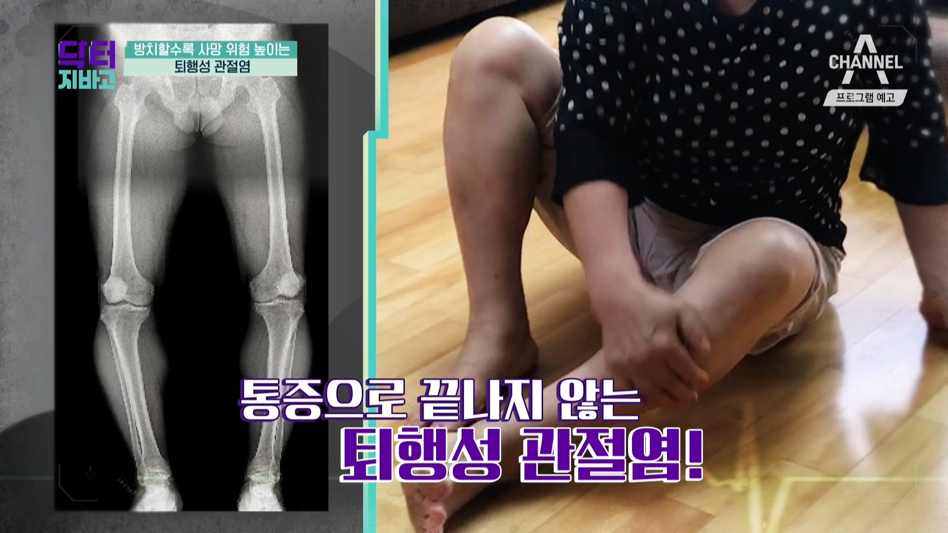 [예고] 퇴행성관절염, '심장병' 발병 위험 높인다?!