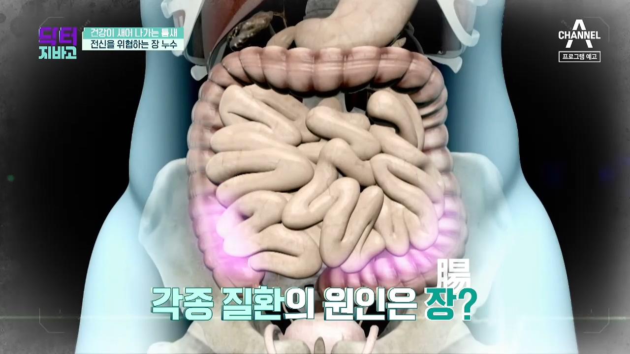 [예고] 장 건강! 제대로 지키지 않으면 치매, 뇌졸중....