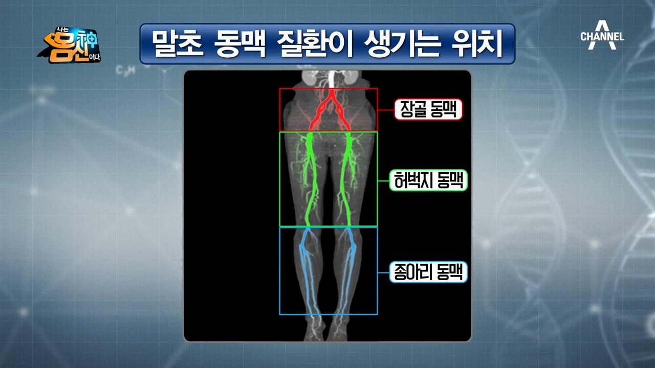골반, 허벅지, 종아리 동맥에 생기는 말초 동맥 질환의....