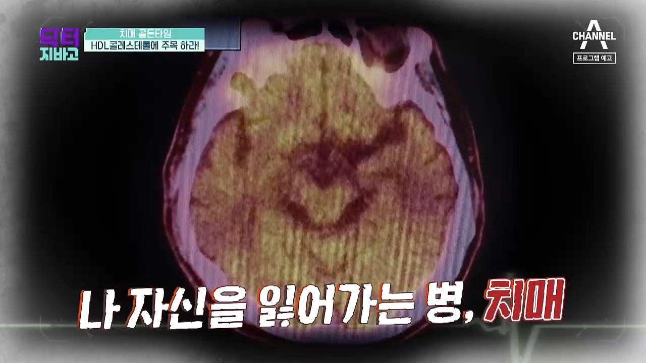 [예고] 치매 골든타임! 'HDL콜레스테롤'을 주목하라....