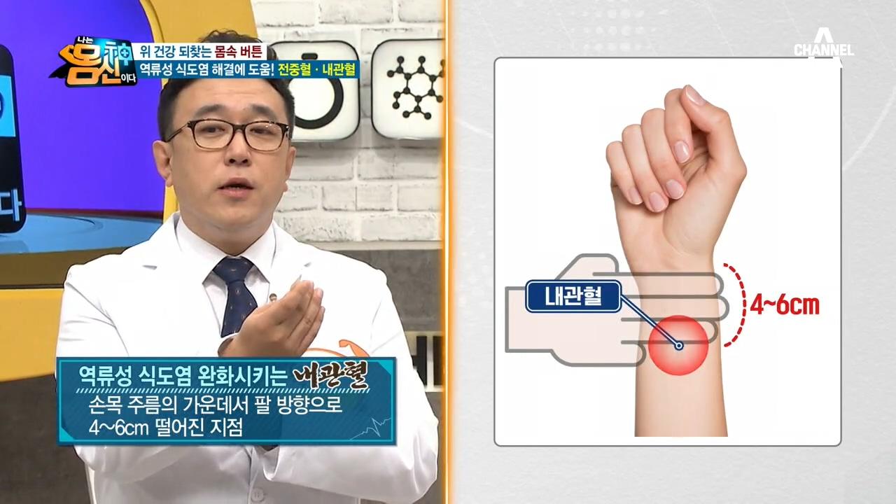 역류성 식도염을 '해결'해주는 혈자리, 전중혈&내관혈!....