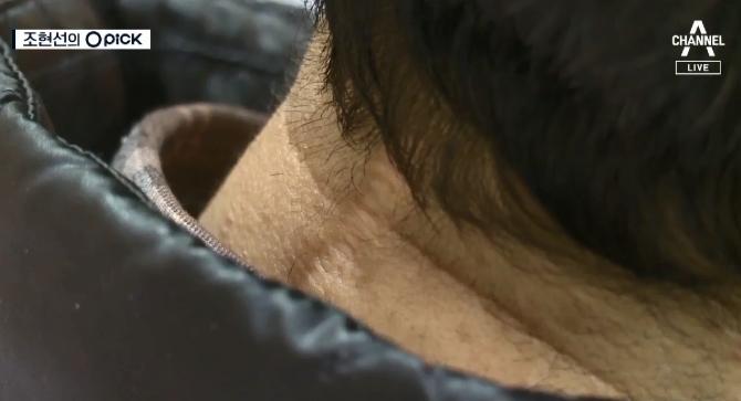 [오픽]목 디스크 수술 받았는데 '실명'