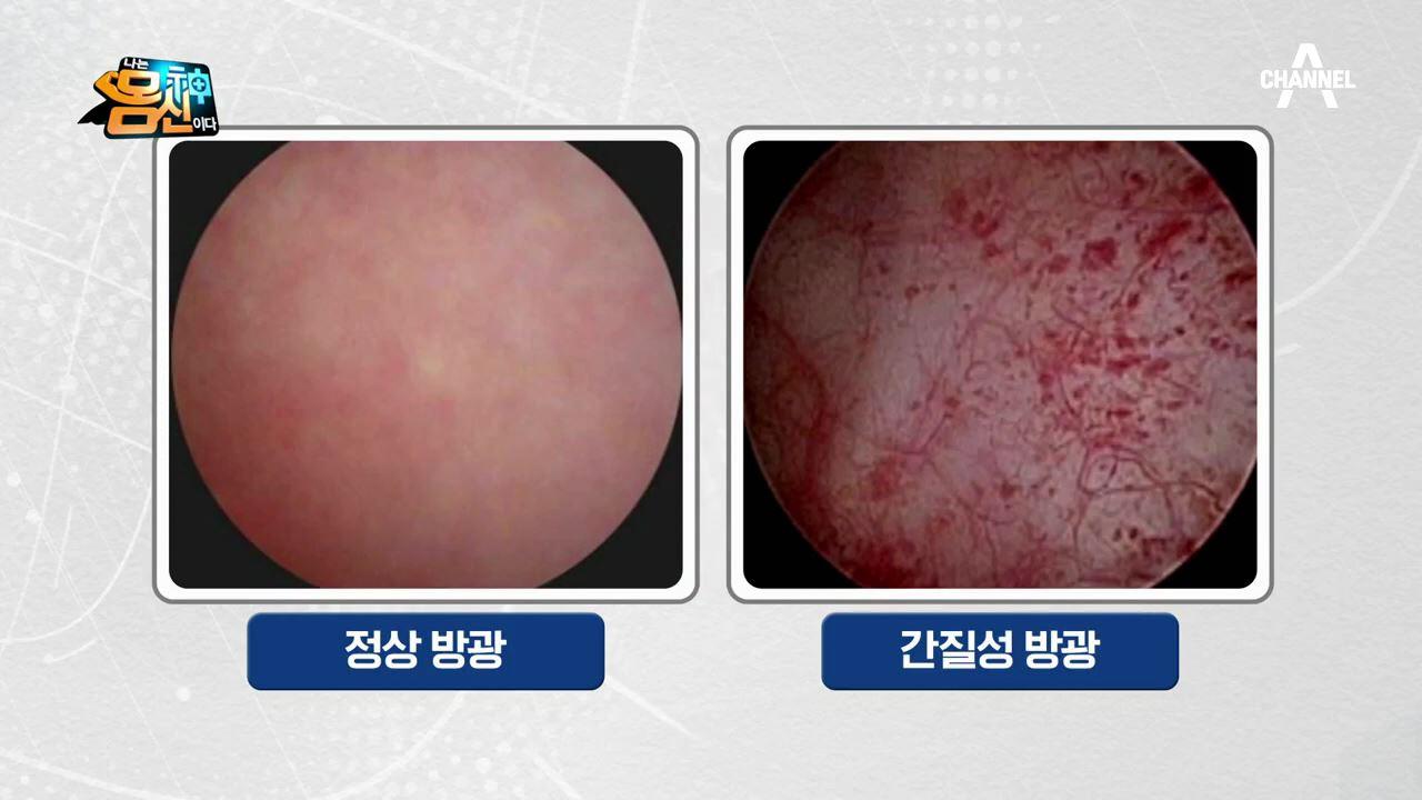 고통 끝판왕 ※'방광 통증 증후군'의 진단 기준※
