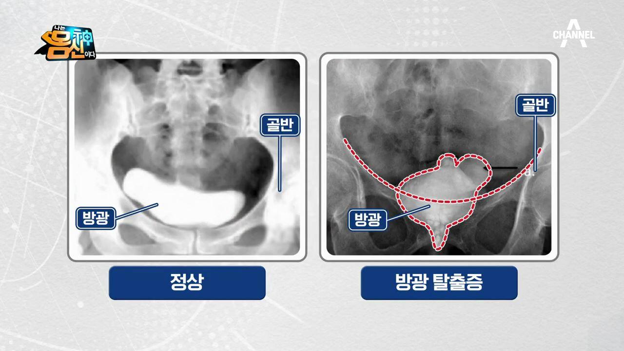 ※충격※ 방광 질환③ '방광 탈출증'...방광이 무너진....