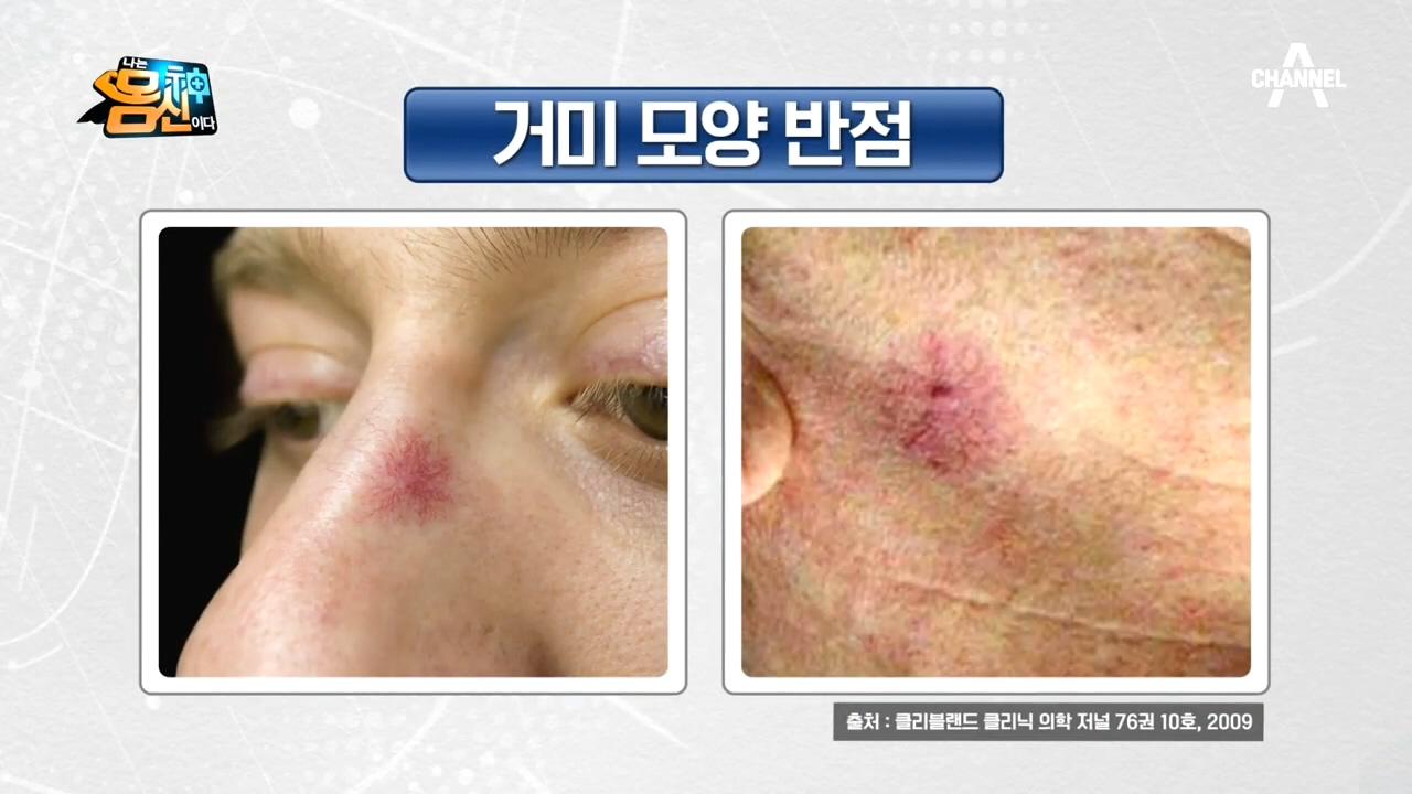 얼굴에 거미 모양 반점이 생기면 간경변증이 있을 수 있....