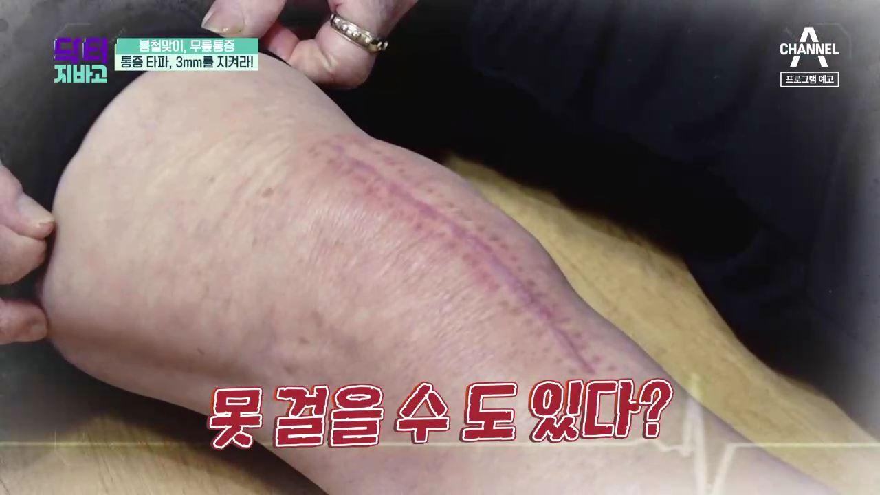 [예고] 무릎 통증 타파! 무릎관절 건강 지키는 법