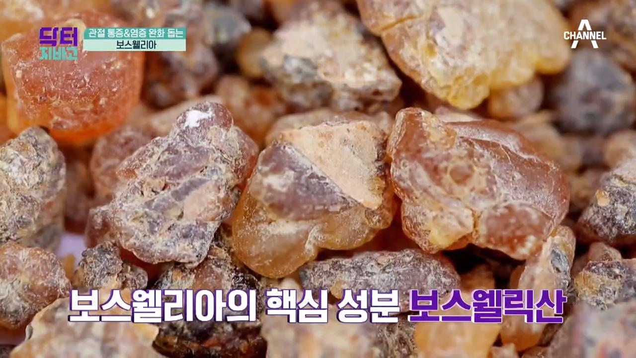 ☆관절 나이 55세☆ 72세 그녀의 관절 건강 비결은?....