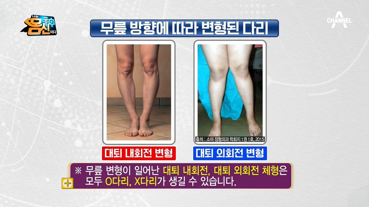 퇴행성 관절염 부르는 O다리, X다리 교정하는 방법은?