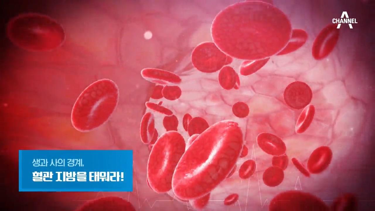 특별기획 생과 사의 경계, 혈관 지방을 태워라!