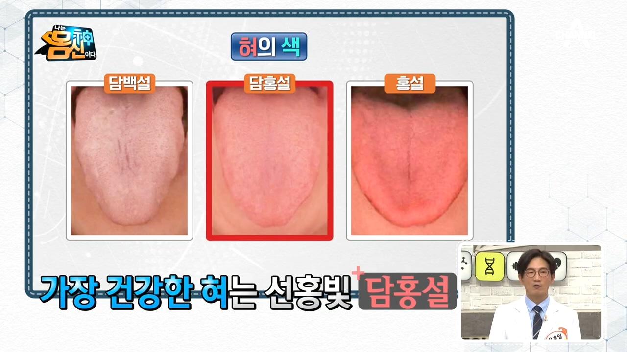 (색깔로 알아보는 건강 적신호)혀의 색으로 본 몸신 가....