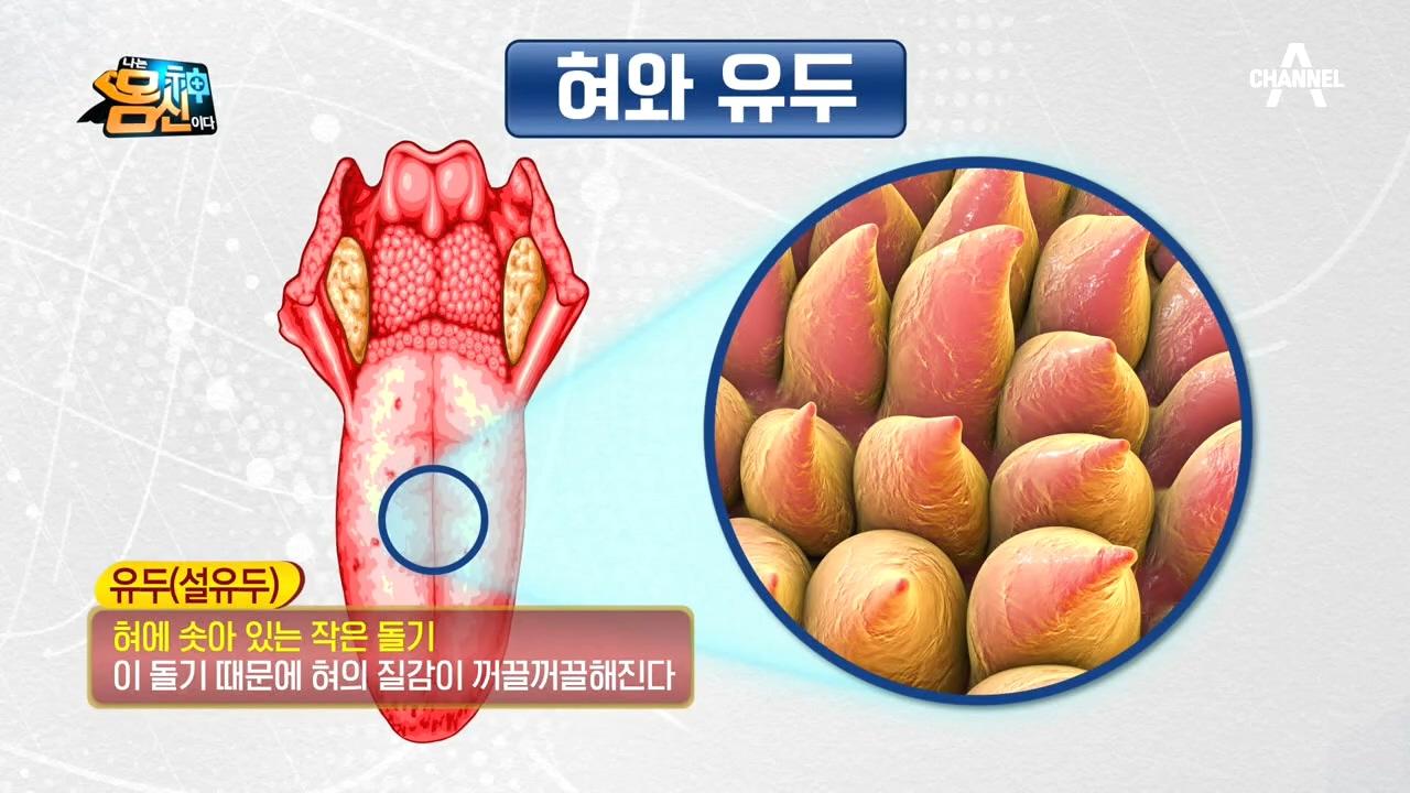 (지독한 입냄새의 원인~♨) '설태'를 통해 혈관 질환....