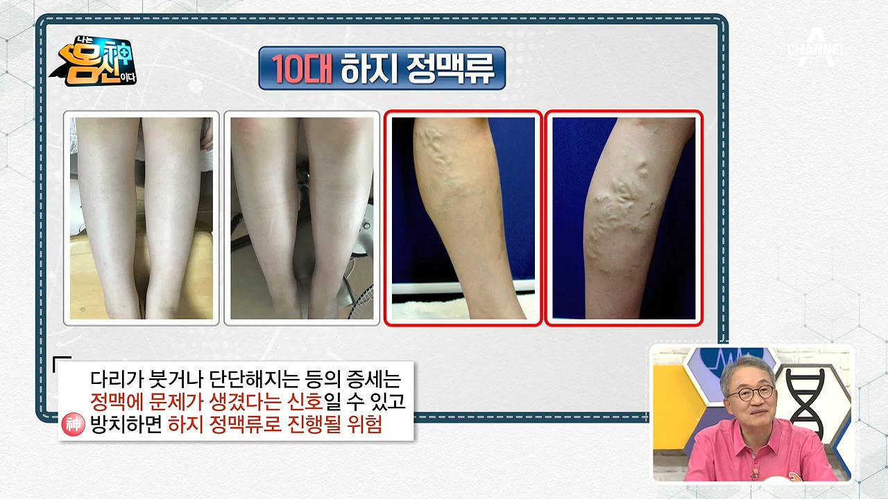 하지 정맥류가 심해지면 다리를 절단해야 할 수도 있다고....