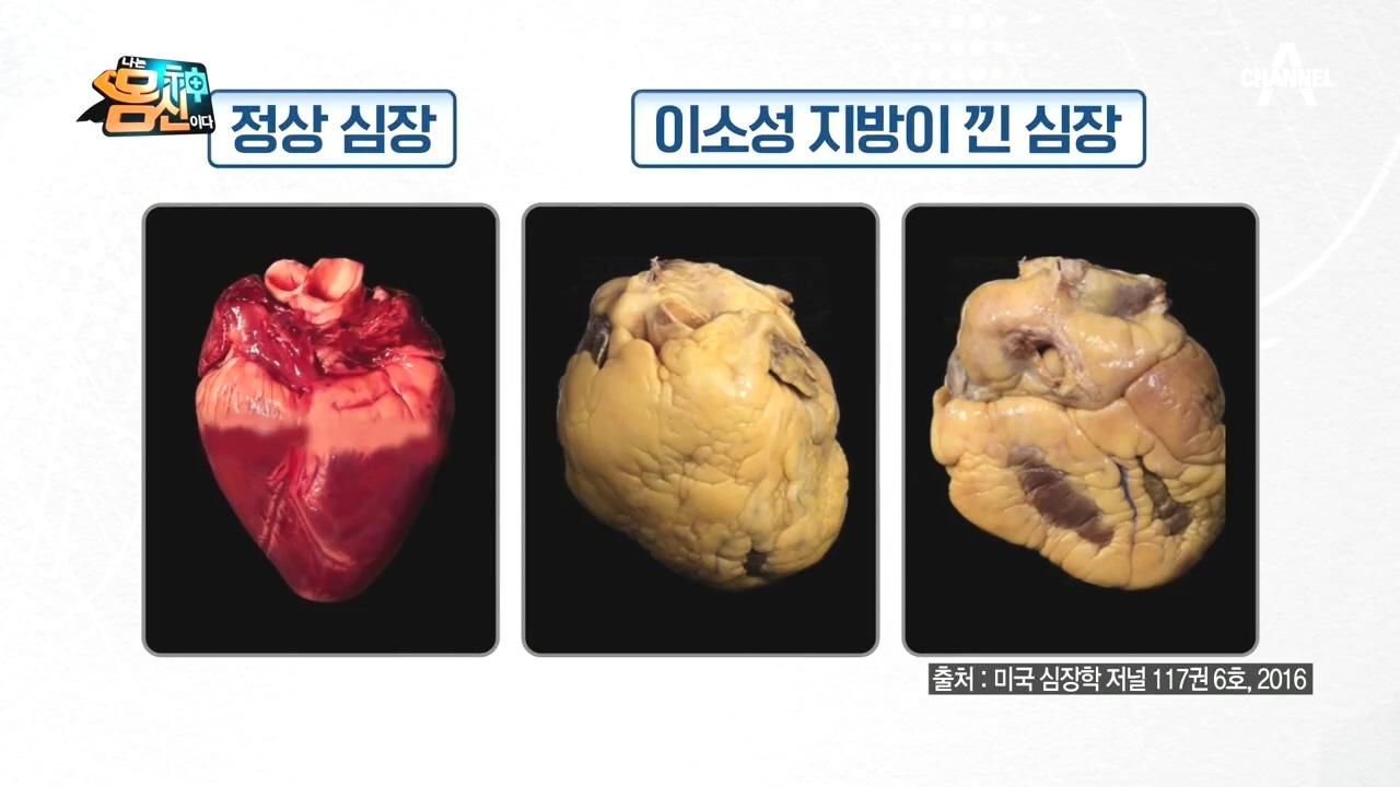 장기를 위협하는 제3의 지방! '이소성 지방'이란?
