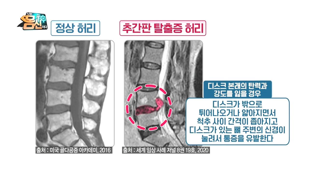 ※필라테스로 허리 통증 극복※ 척추의 추간판 탈출증이란....