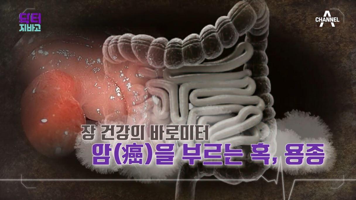 닥터 지바고 323회
