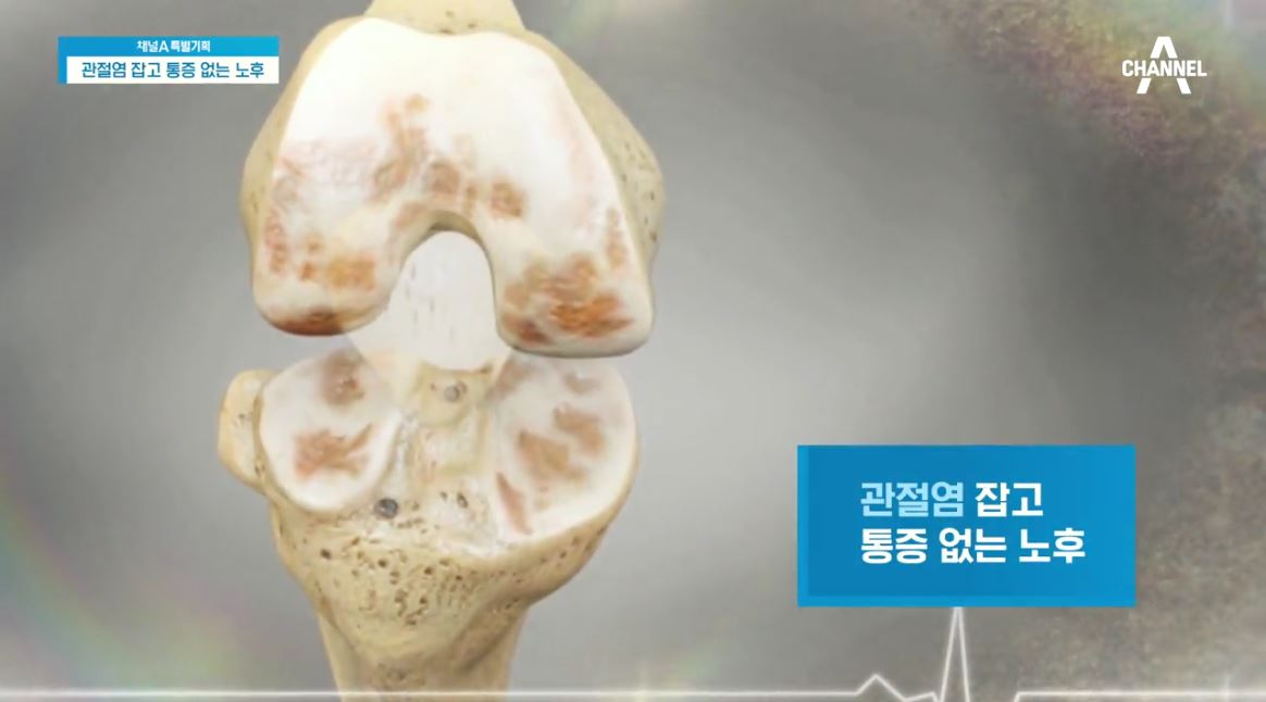 특별기획 관절염 잡고 통증 없는 노후