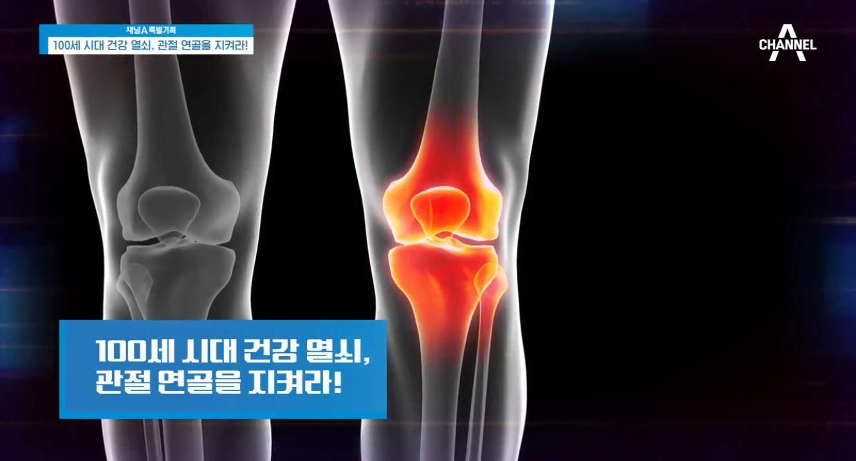 특별기획 100세 시대 건강 열쇠, 관절 연골을 지켜라....