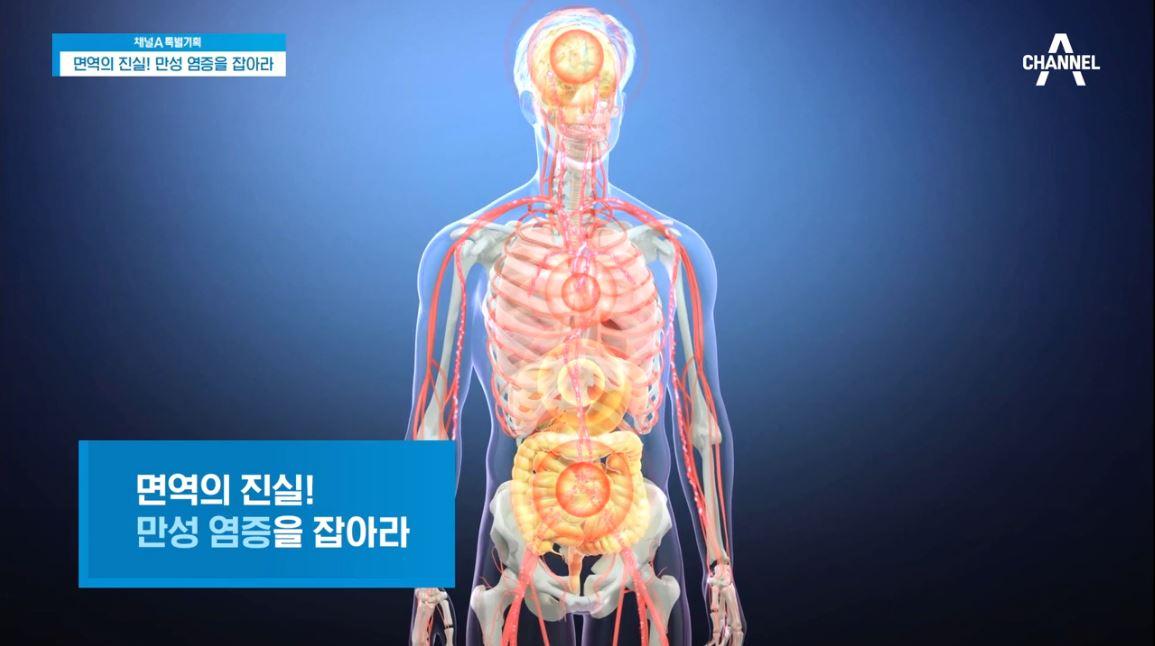 특별기획 면역의 진실! 만성 염증을 잡아라