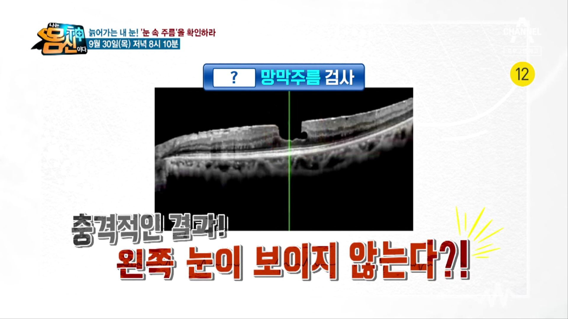 [예고] 실명의 위험을 부르는 질병의 원인은 눈 속 망....
