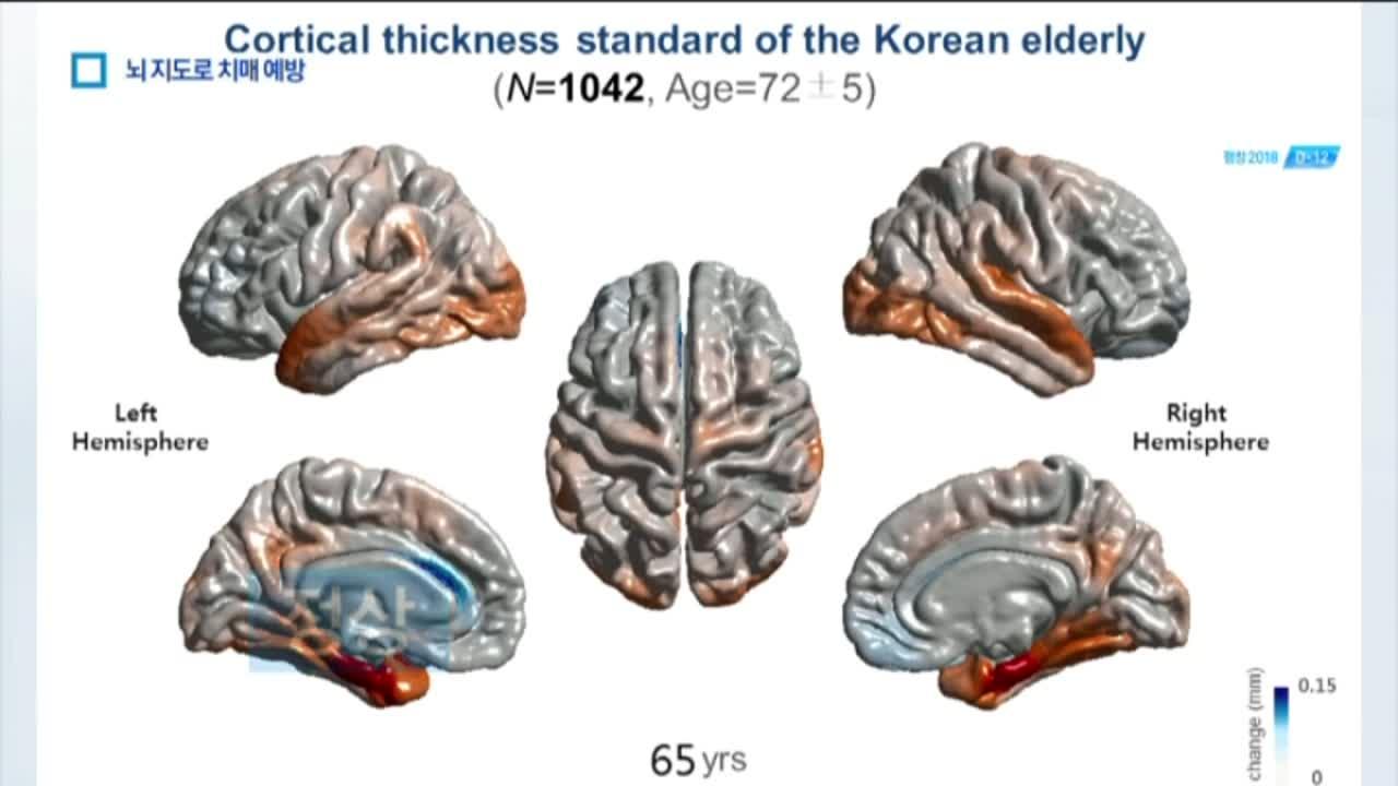 머리 맞댄 연구진…치매 예측법 첫 상용화 눈앞
