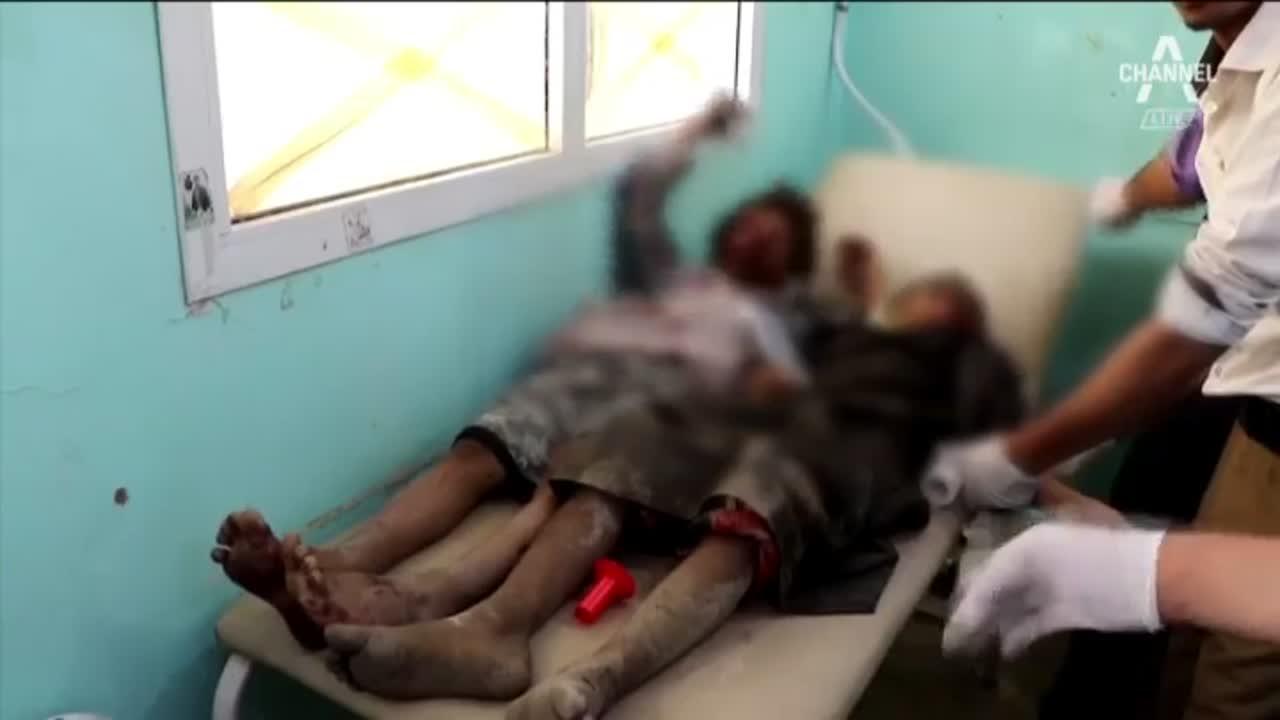 마지막이 된 웃음…예멘 아이들의 슬픈 장례식