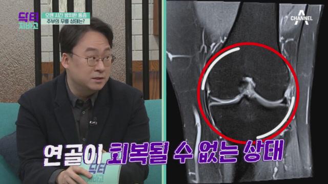 관절 간격이 줄어들기 시작한 주인공의 무릎 상태, 관절....