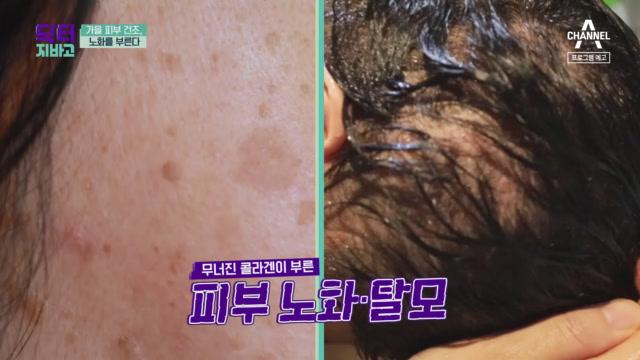 [예고] 피부 속 콜라겐 부족, 노화의 지름길?!