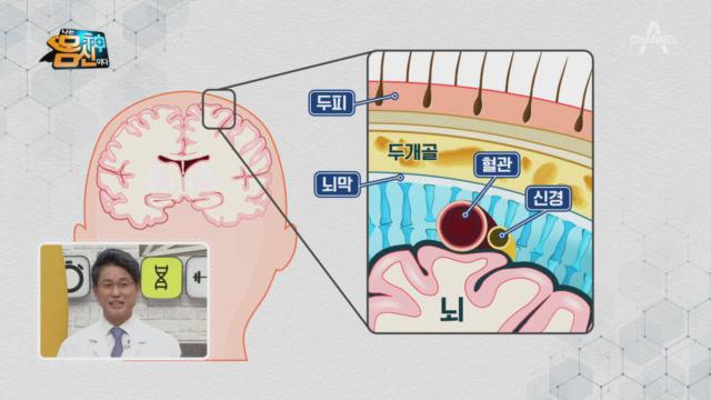 두통은 뇌 주변 두피에서 발생하는 통증이다?