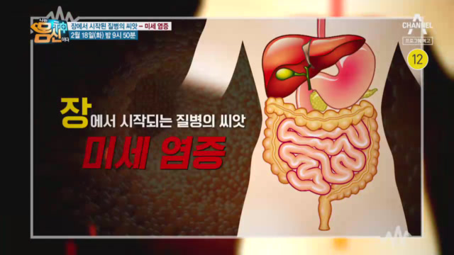 [예고] 장에서 시작되는 질병의 씨앗 '미세염증'