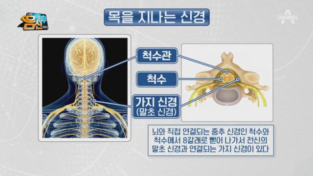 목에 있는 뇌, '척수'! 척추 손상이 전신 마비를 일....