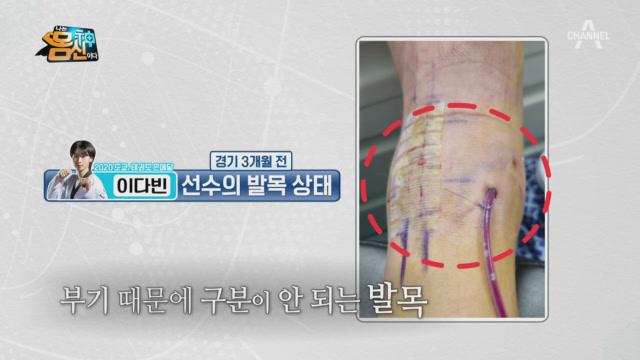 태권도 이다빈 선수, 심각한 발목 부상을 안고 올림픽에....