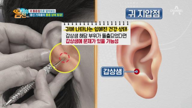 인체의 축소판 '귀', 귀를 통해 건강 이상 신호를 확....